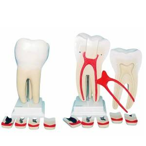 Dente Molar ampliado 8 partes TGD0311G