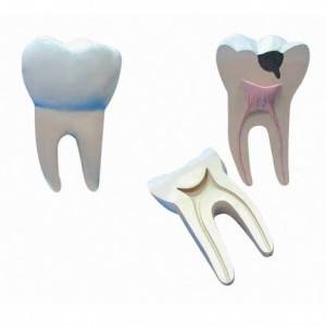 Dente molar ampliado TGD0311B