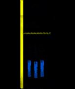 Condicionador Ácido Fosfórico Gel 37% - Angelus