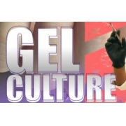 GEL CULTURE
