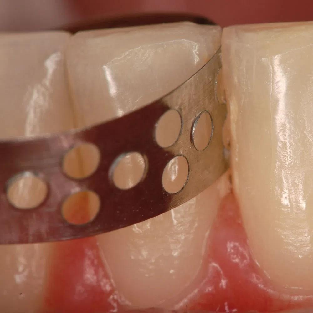 Cinta Profilática em Aço Inox 4mm - WILCOS  - CD Dental