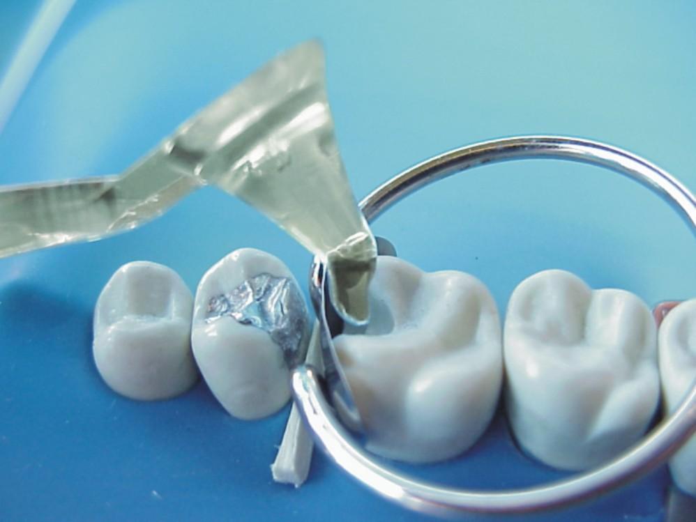 Espátula Contact + Gold Ponto Contato (Ref.4202G) - TDV  - CD Dental