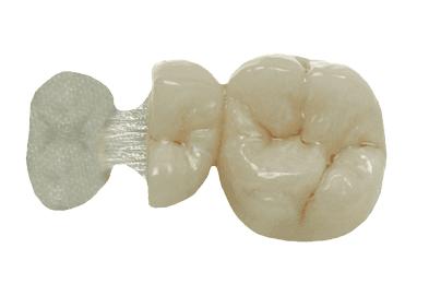 Sistema Fibrex-Lab - ANGELUS  - CD Dental