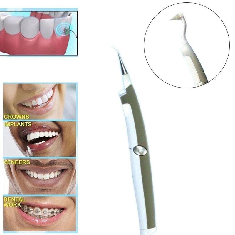 Aparelho de Limpeza Remove Placa Dental Dentes Bacteriana Tartaro Manchas