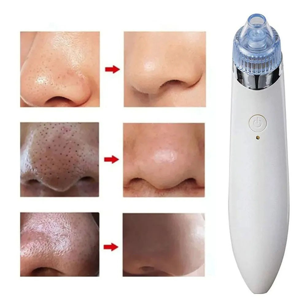 Aparelho Removedor de Cravos Espinhas Limpeza Facial Beleza Recarregavel Acne Rosto Sucçao Vacuo