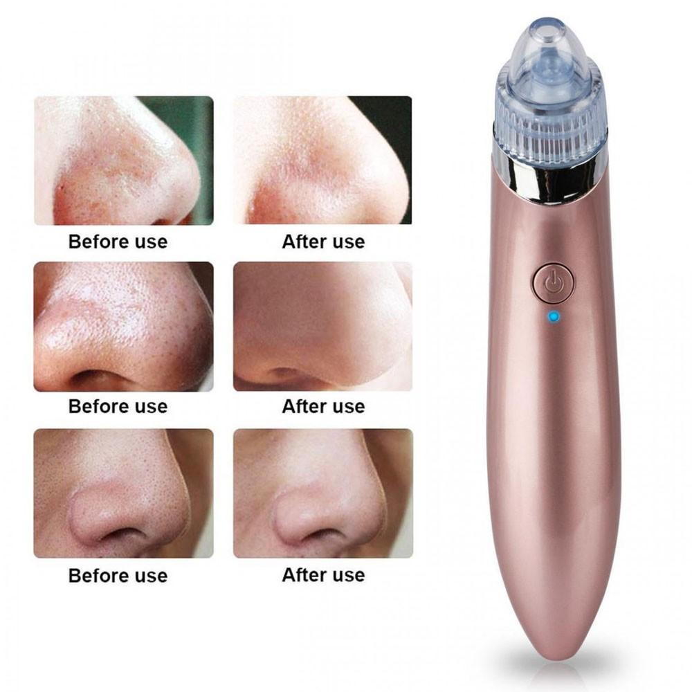 Removedor de Cravos e Espinhas Aparelho Limpeza Facial Poros Rosto Beleza Saúde