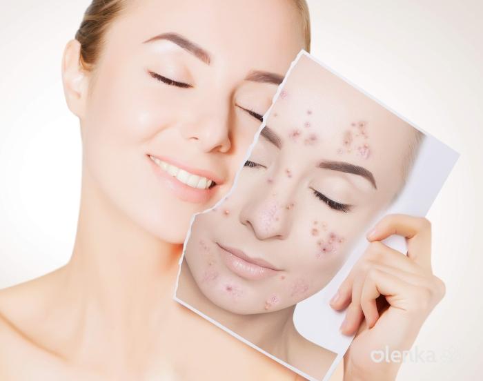 Protocolo acne com led