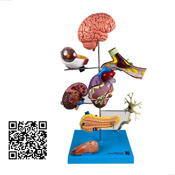 Principais Órgãos Acometidos pela Diabetes, em 11 partes