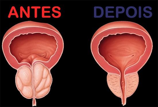 Renova Prost Saúde da Próstata 60 Capsulas Original  - ACTIONLTDA