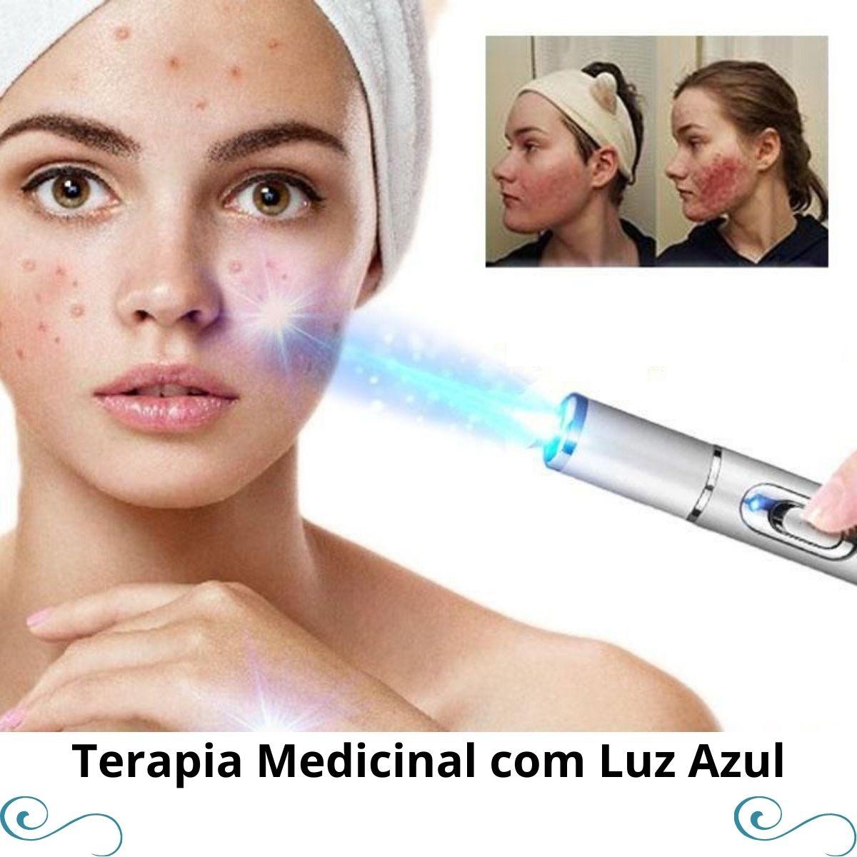 2 Canetas Led Para Remoção Varizes/rugas/manchas/acne