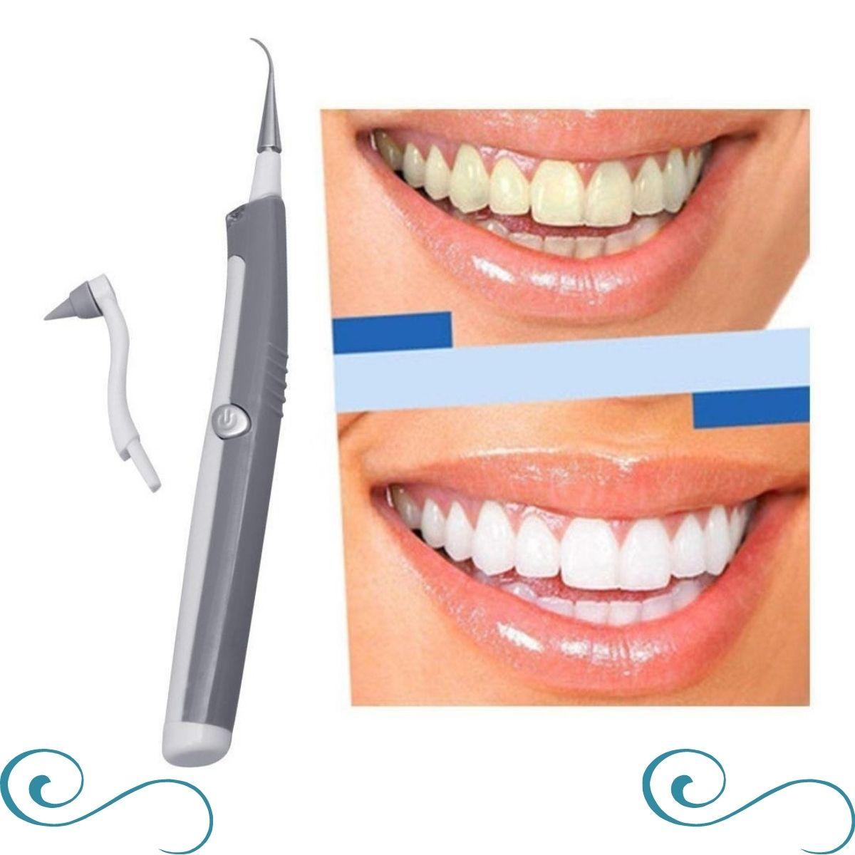 Aparelho Para Limpeza Dental Removedor De Tártaro E Placa Bacteriana- COPY-003653-2