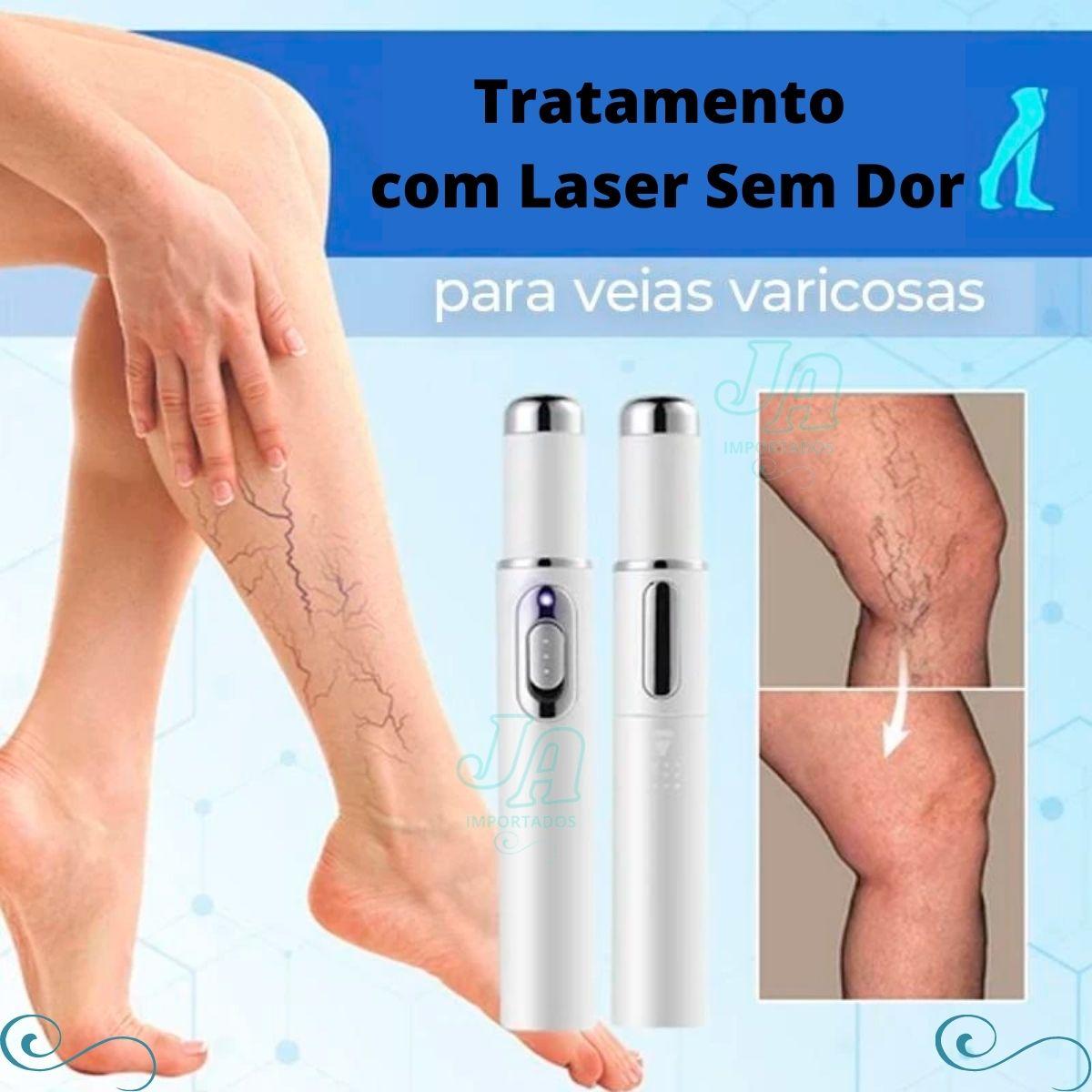 Caneta Portátil Para Tratamento De Varizes / Acne / Laser / Claro Azul / Terapia Facial / Instrumento De Beleza - COPY-KD7910-10