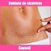 COPASIL - CICATRIZES E QUELÓIDES - 20G