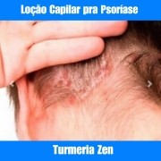LOÇÃO CAPILAR PRA PSORÍASE - 50ML