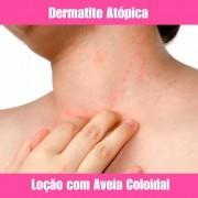 LOÇÃO PARA DERMATITE ATÓPICA - 100ML