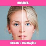 ROSAVIN E ASSOCIADOS - ROSÁCEA