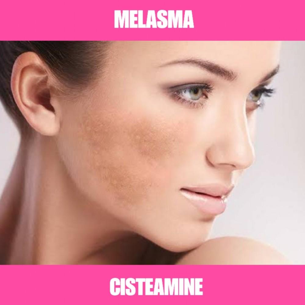CISTEAMINA - CLAREADOR DE MELASMA - 30G