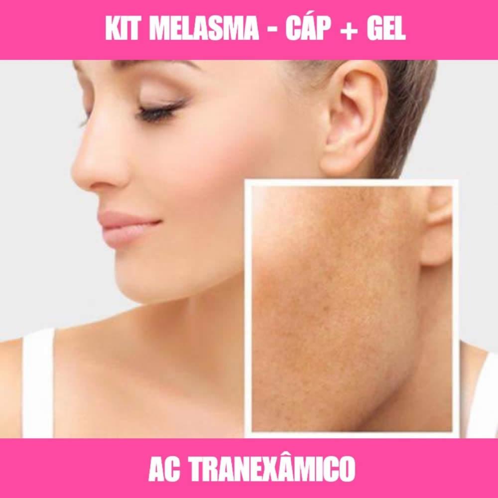 KIT MELASMA ÁCIDO TRANEXÂMICO - MELASMA