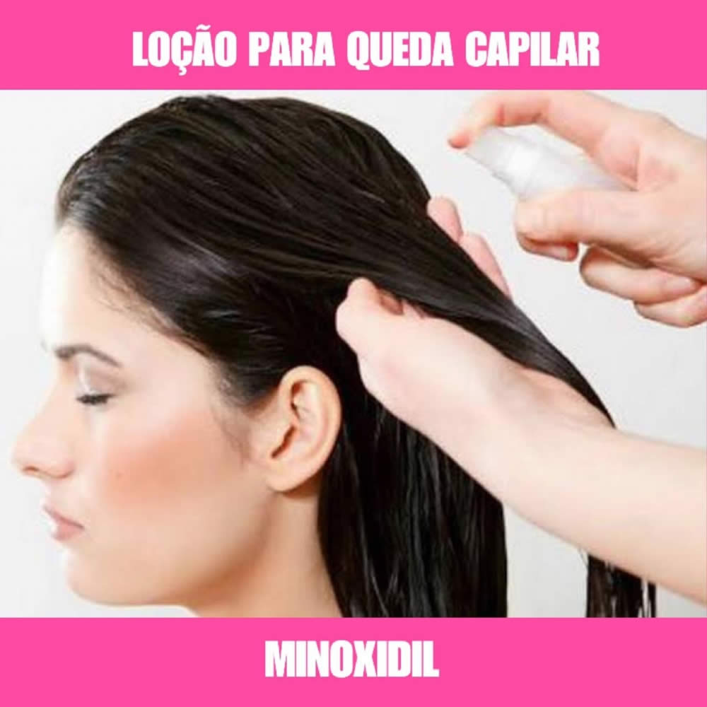 MINOXIDIL - LOÇÃO CAPILAR