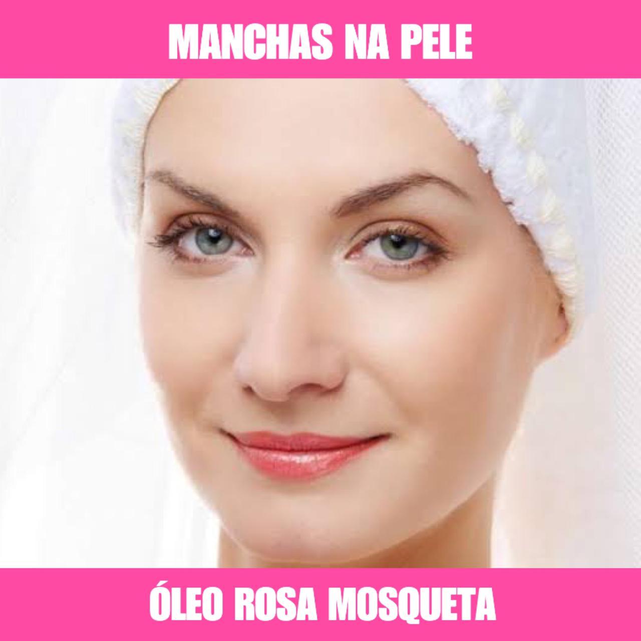 ÓLEO DE ROSA MOSQUETA - 10ML