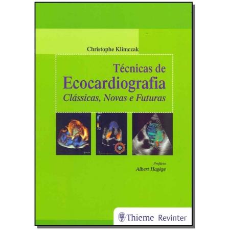Técnicas de Ecocardiografia