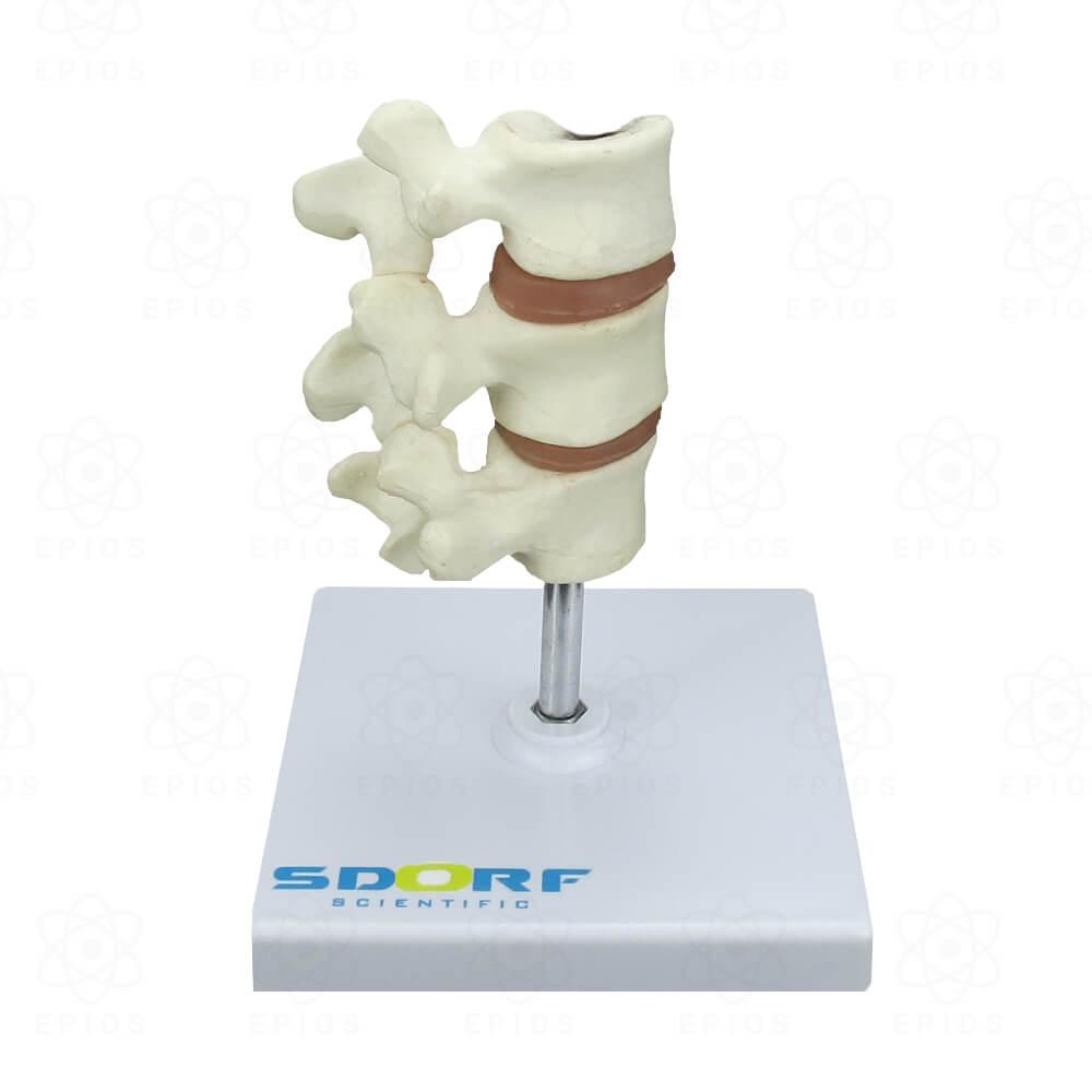 SD5200 MODELO DE OSTEOPOROSE