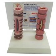 Comparação de Bronquio Normal e Asmático COLEMAN - COL 3462
