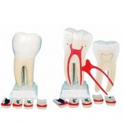 Dente Molar Ampliado 8 Partes com Evolução da Cárie - ANATOMIC - Cód: TGD-0311-G
