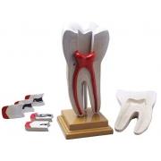Dente Molar Ampliado com Evolução de Cárie 8 Partes COLEMAN - COL 3404