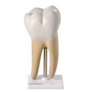 Dente Molar Ampliado - Saudável e com Cáries - ANATOMIC - Cód: TGD-0311-B
