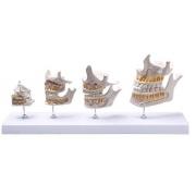 Desenvolvimento da Dentição COLEMAN - COL 3402