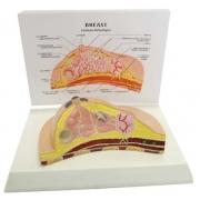 Modelo de Mama Patológico COLEMAN - COL 3461