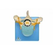 Vértebra Torácica C/ Cordão Espinhal - SDORF - Cód: SD-5014