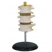 Vértebras Lombares com 3 Discos Dorsal COLEMAN - COL 1117