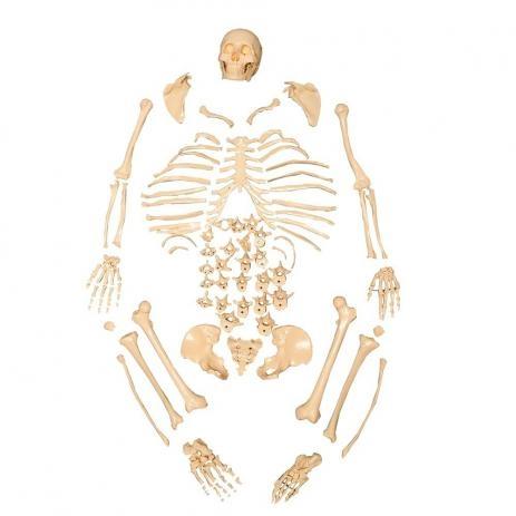 Esqueleto Padrão Desarticulado ANATOMIC - Cód: TGD-0101-C