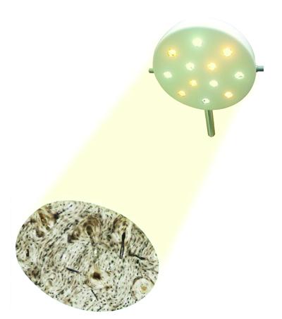 Foco Cirúrgico Bicolor de 12 LEDS para Teto Vet - DELTA LIFE - Cód: DL4300