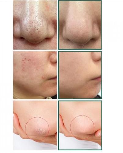 Sabonete Facial AHA BHA PHA 30 Days Miracle Cleansing Bar  - Some By Mi