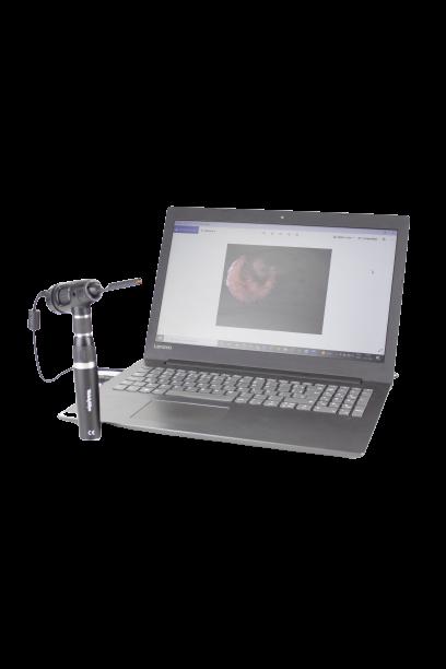 Otoscópio Macroview Digital Veterinário